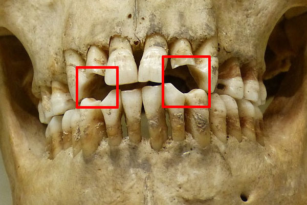 Teeth that have been worn down due to pipe smoking.