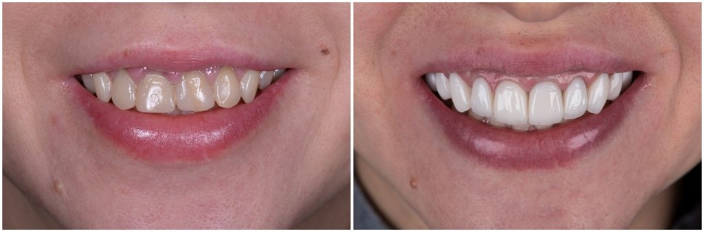 Before and After Dental Crown Treatment